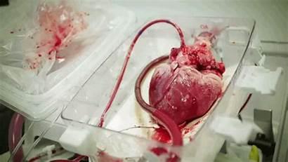 Heart Human Transplant Blood Surgery Pumps Before