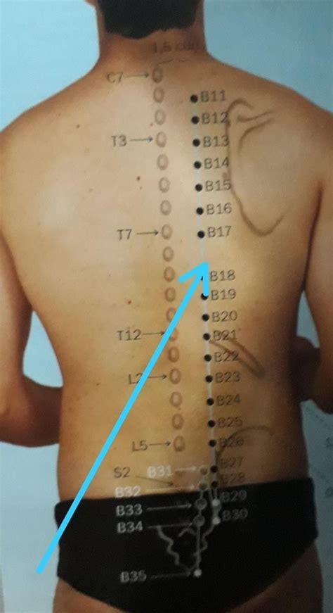 pin  liliana alpaca  acupuntura mapas  dicas