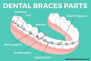 Dental Braces Cost And Invisalign Cost