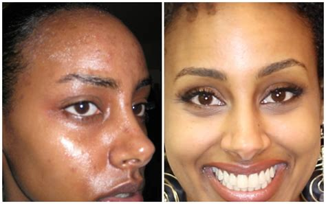 Equate Acne Treatment System Ingredients How To Remove