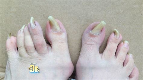 treatment  womans head  toe health problems