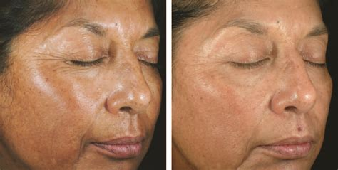 chemical peels evolvmd laser tattoo removal