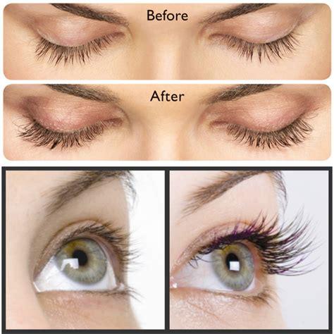 latisse eyelash growth serum sunshine cosmetic clinic