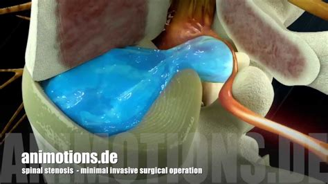 spinal stenosis surgery  animation youtube