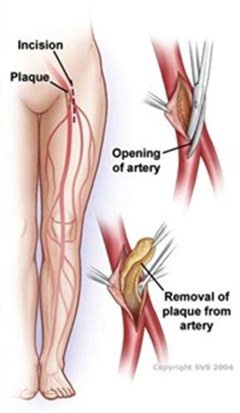 vascular endovascular surgery  extremity bypass