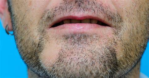 Minoxidil Female Pattern Hair Loss