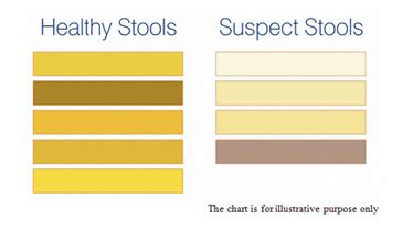 what causes light colored stools 57 light brown stool color meanings the gallery for pale