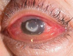 A Corneal Ulcer     Eye Health Central