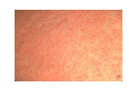 Can Food Allergy Cause Rash On Arm Foodfashco