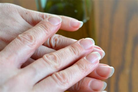 How To Heal A Damaged Cuticle Livestrongcom