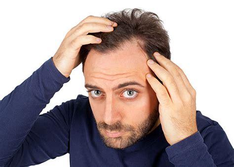 Male Hair Loss Alpharetta  Goodman Dermatology