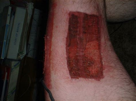 melanoma skin cancer   scalp