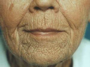 Маски от морщин вокруг глаз из желатина