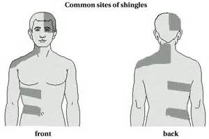 What is shingles and how to treat it? - Turning Point Acupuncture  Chickenpox Traditional Chinese Medicine