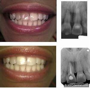 Endodontics is needed for root canal pain infection- NYC ...