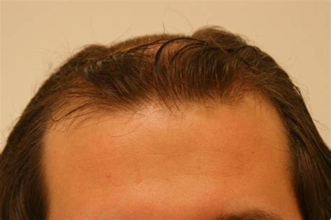 minoxidil shedding phase pictures propecia yes or no atarax solution injectable