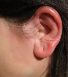 Description Erysipelas ear.jpg Erysipelas