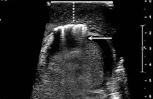 Transverse Ultrasound Of The Left Hemiscrotum Reveals