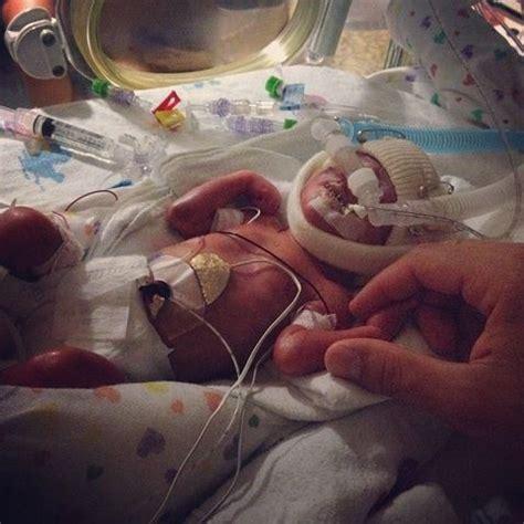 les incroyables photos de ward b 233 b 233 n 233 224 25 semaines de grossesse montrent le miracle de la