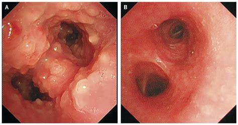 Eosinophilic Bronchitis | NEJM
