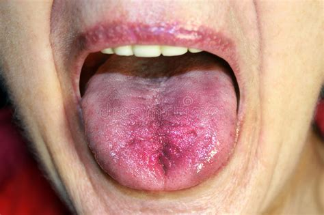 tongue  red inflamed hyperemia   mucous