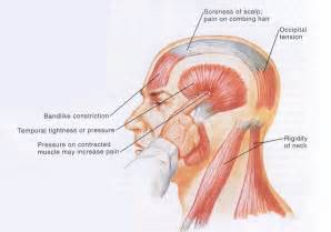 ... type of head pain is a tension headache caused by muscle tension Tension-Type Headache