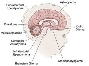 Childhood Brain Cancer - Tumor - Kids - Children Charity - Symptoms Hypothalamic and Visual Pathway Glioma, Childhood