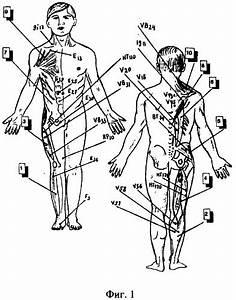 Палки от остеохондроза для ходьбы