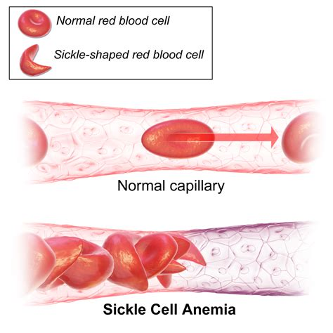 Crispr Gene Editing Corrects Sickle Cells In A Mouse. Accelerated Online Bachelor Degree Programs. Online Basic Accounting Courses. Alliance Cable Company E Commerce Development. Chicago Commodity Trading Firms. Joint Life Insurance Policy Acne On Dry Skin. Teachers Credentials California. Tax Help Portland Oregon Tighten Skin On Face. Credit Cards For New Small Businesses