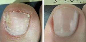 Как применять салициловую мазь для лечения грибка