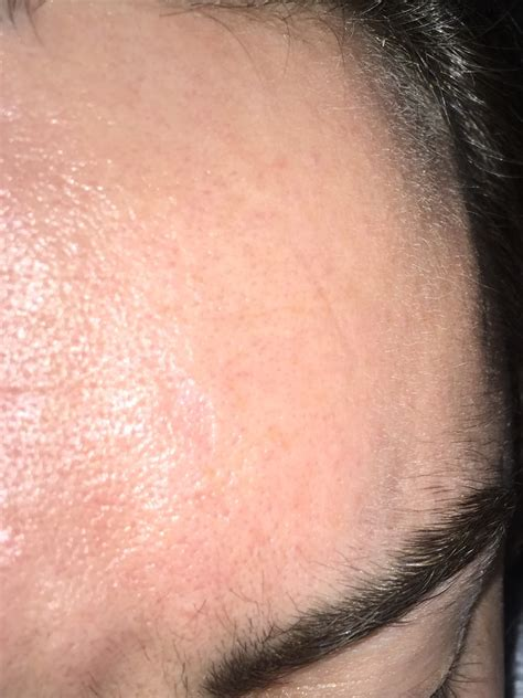 Bid On Terrible Large Pores General Acne Discussion By