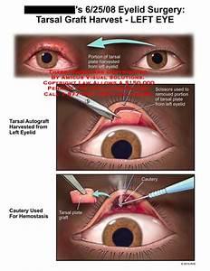 Eyelid Surgery  Tarsal Graft Harvest