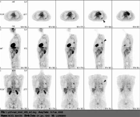 figure unusual positron emission tomography findings