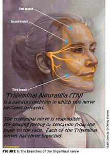 Tmj Chart Trigeminal Neuralgia Tn Is A Condition In Which