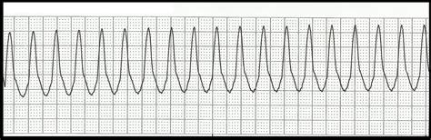 float nurse ekg rhythm strip quiz