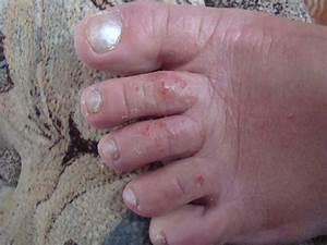 Что это чешутся ступни ног может это грибок