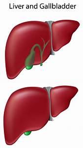 Gallbladder Health Buying Guide