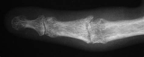 reconstruction pyrolytic carbon proximal interphalangeal joint implant arthroplasty