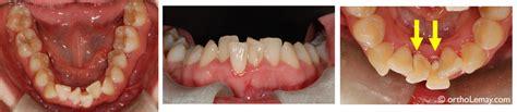 hygi 232 ne dentaire et buccale en orthodontie comment 233 viter les probl 232 mes
