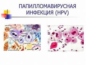 Вирусы папилломы человека hpv тип 16 лечение