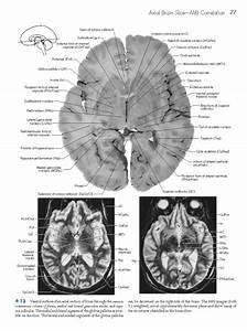 [neuroscience] Haines XX - Neuroanatomy - Atlas of ...