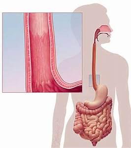Средство для похудения редуксин 15 отзывы