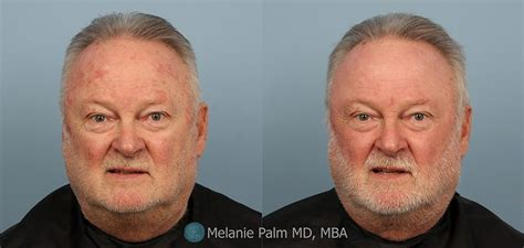 Men Before & After Photos -Hair Loss -Belly Fat -Wrinkles