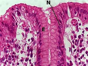 Simple Columnar Epithelium Fall 2009   Best of Histology
