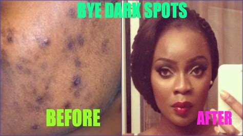 spots be treating acne scars giveaway