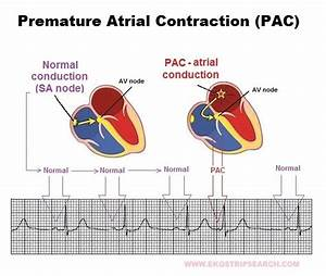 Pin Premature Atrial Contraction Images on Pinterest