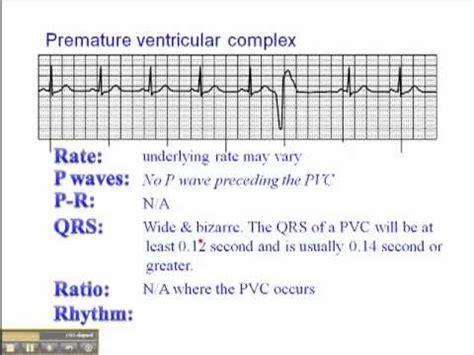 ecg premature ventricular complexes pvc youtube