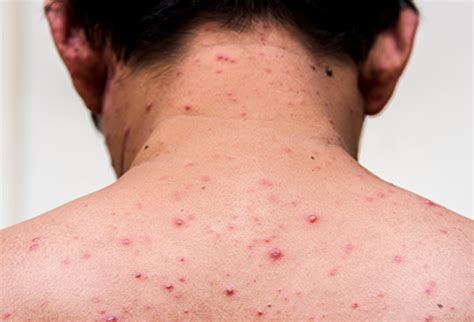 What Does Measles Look Like Chicken Pox