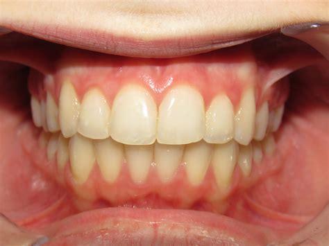 kersten orthodontics
