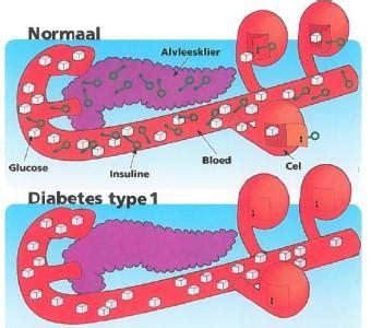 diabetes symptomen type 2